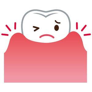 歯周病の症状とは?